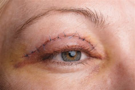 eyelid surgery nhs uk