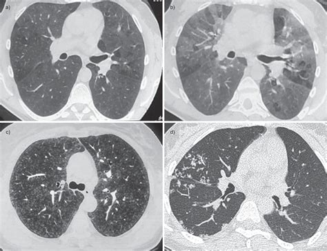 mosaic pattern obliterative bronchiolitis small airways diseases excluding asthma and copd an