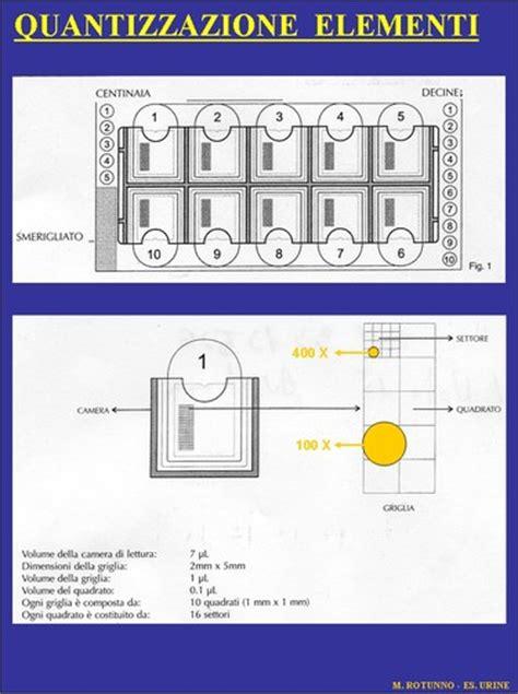 esame microscopico sedimento urinario 2006 l esame sedimento urinario tra artigianato ed