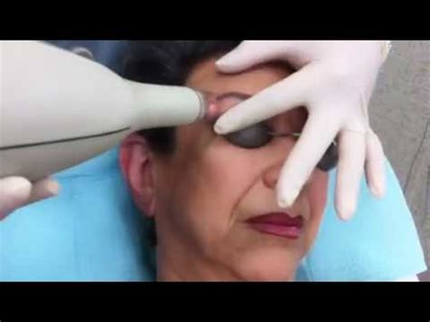 how to remove eyebrow tattoo eyebrow removal using the yag 5 palomar laser part
