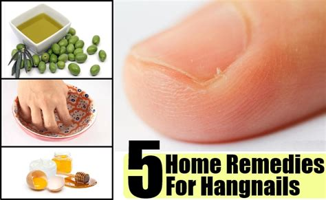 5 home remedies for hangnails treatment and cure