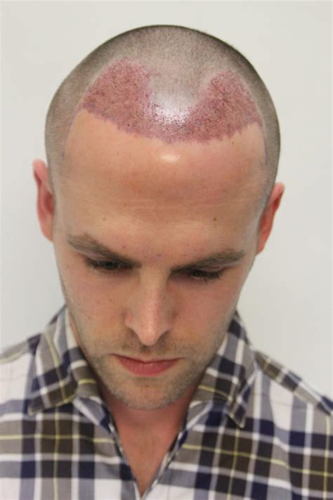 buzz cut for receding hairline day 2