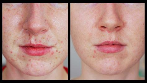laser tattoo removal freckles freckles be gone my laser experience youtube