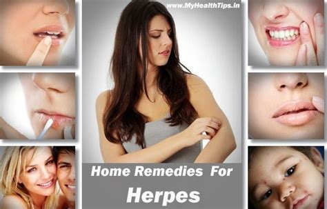 Home Remedies For Herpes by How To Get Rid Of Herpes For Herpes