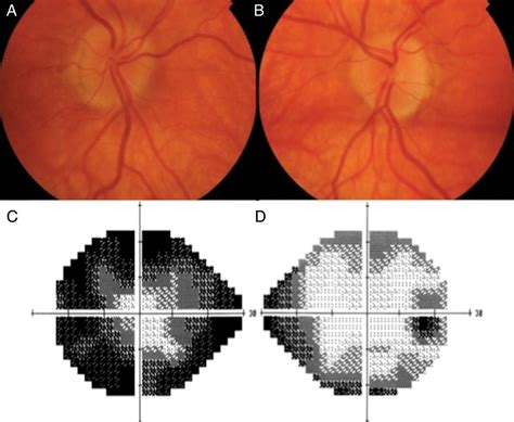 cloverleaf pattern visual field a practical approach to diagnosis assessment and