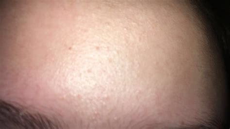 skin colored skin colored bumps on cheeks and forehead general acne