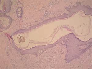 pilonidal cyst pilonidal cyst sinus tract