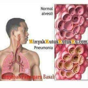 Minyak Kutus Kutus Bayi terapi minyak kutus kutus untuk paru paru basah minyak