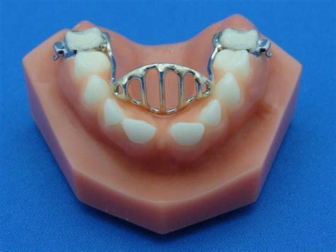 Tongue Crib Appliance by Appliance Images Specialty Appliances Orthodontic Laboratory