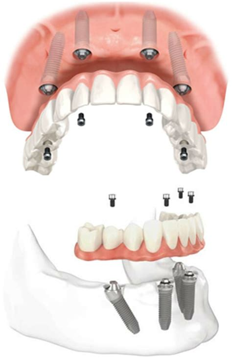 all on four dental implants cost   fort worth texas