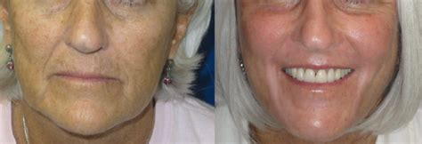 makeup for 62 year old makeovers for 62 year old laser skin resurfacing before