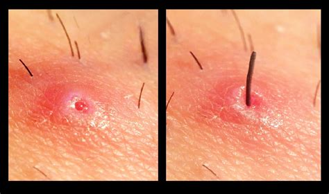 how do you heal ingrown hairs on your chin ingrown hair removal close up youtube