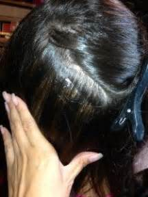 hair styles for trichotellamania 221 best images about hair pulling on pinterest types of