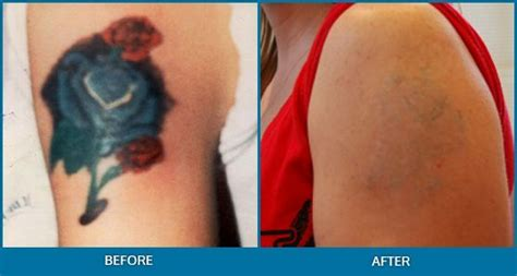 tattoo removal sunderland 2289 best tattoos images on cool tattoos