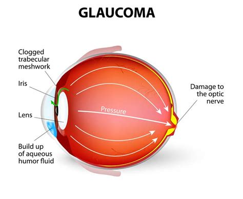 best glaucoma treatment glaucoma symptoms causes treatments news today