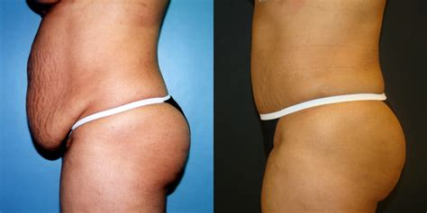 Can I A Tummy Tuck After C Section by Tummy Tuck With Liposuction Of Five Left
