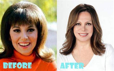 louis licari plastic surgery before louis licari plastic surgery images hairstylegalleries com
