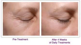 palovia at home treatment of eye area wrinkles skin