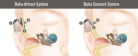 getting a perm with a baba hearing implant can i bone conduction hearing implants cochlear baha