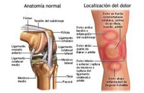 dolore al ginocchio interno ginocchio