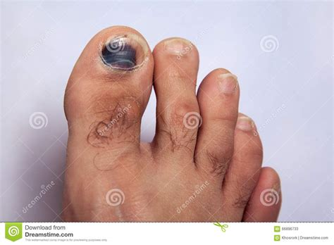 swollen toenail bed bruise on toe nail on right foot stock image image 66896733