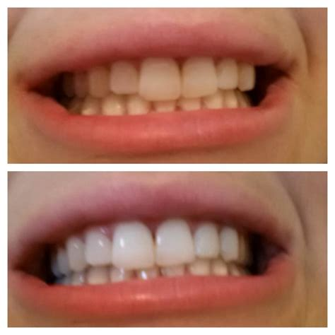 do teeth whitening lights work natural teeth whitening using charcoal actually works