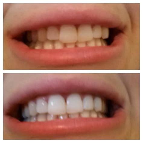 laugh love  lana natural teeth whitening