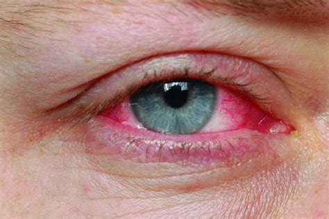 pink eye color out for pinkeye during cold flu season healthy