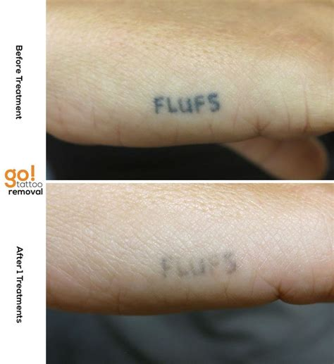 tattoo removal time 1000 images about removal in progress on