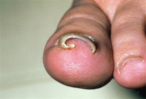 infected toenail bed ingrown toenail infection remedies home treatment