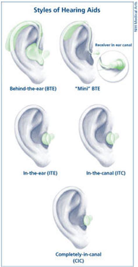 hearing aid types hearing aid wikipedia the free encyclopedia