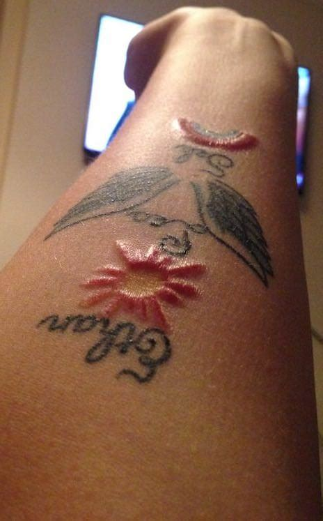red tattoo ink common reactions  allergies