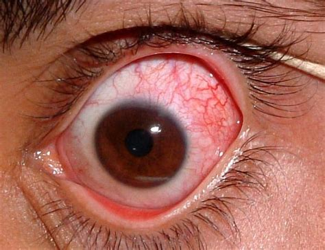 eye ulcer corneal ulcer scar things you didn t