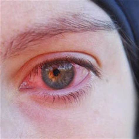 eye infection home remedy home remedies viral eye infection