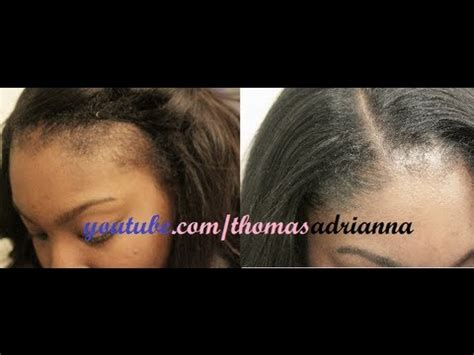 how cover thinning hair in a sew in no edges my secret to thinning edges reloaded youtube