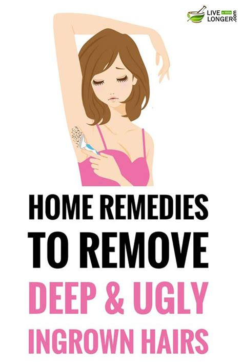 best way to draw out an ingrown hair 375 best images about health home remedies on pinterest