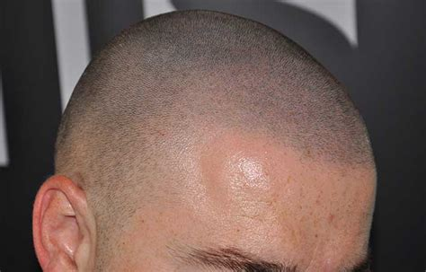 hair pigment loss pigment loss in hair hairstylegalleries com