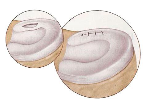 menisco interno rotto artroscopia de rodilla cl 237 nica traumatol 243 gica doctor