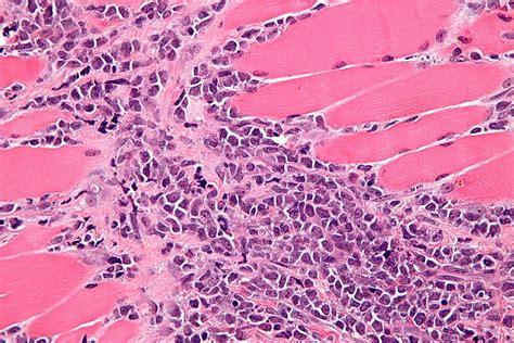 myeloid sarcoma wikipedia