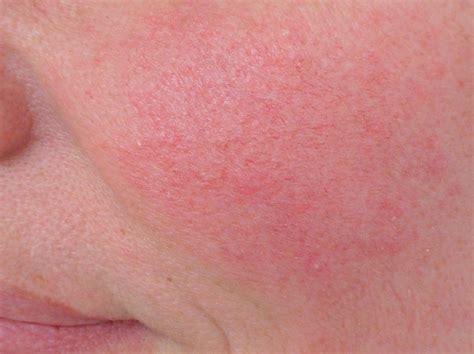 traitement des rougeurs et angiomes docteur val 233 rie thirion