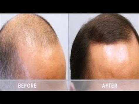 minoxidil before and after male mens hair loss treatment minoxidil arganrain before