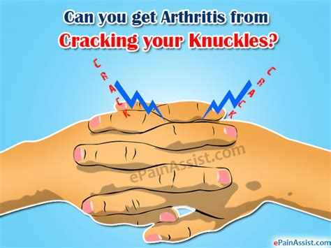 Can You Get Your Mba While Getting Your Bachelors by Can You Get Arthritis From Cracking Your Knuckles