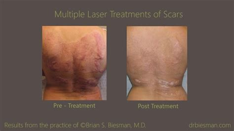 treatment of scarring brian biesman md nashville tn