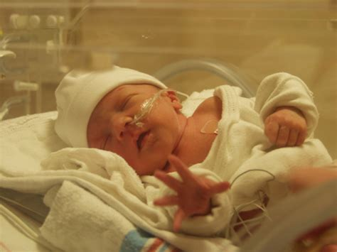 Three More Babies Born by Lunggo Mojok Images Of 11 Weeks Premature Infants