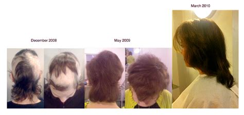 trichotillomania trich sufferers gain support  hair   thesecretmane salon prcom
