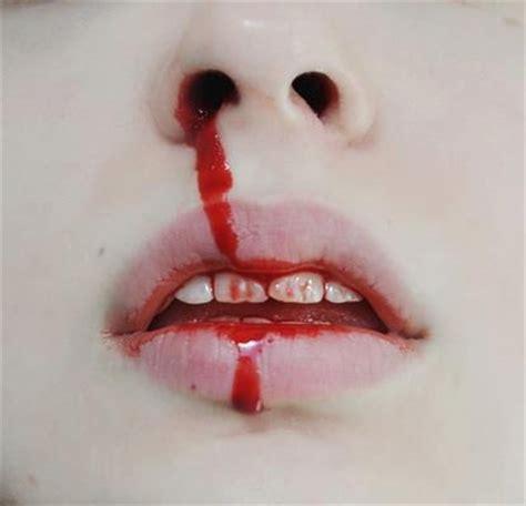 bloody nose bloody nose phenobarbital