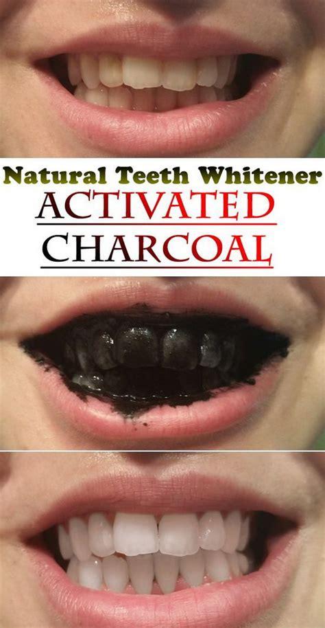 best tooth whitener 15 ways to whiten your teeth teeth
