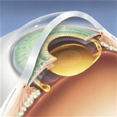 multifocal intraocular lenses schulze vision & surgery