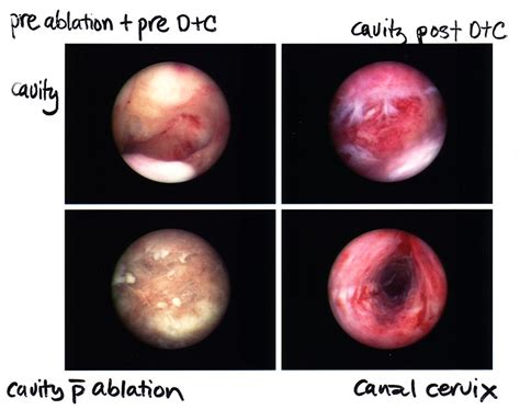 heavy periods after c section dr gordon lim s gynaecology blog endometrial ablation as