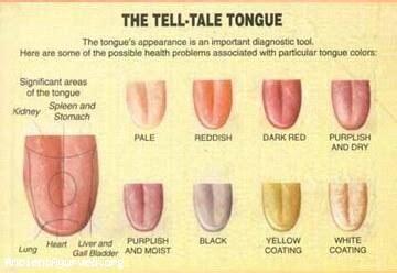 what color should your tongue be diagnosis tongue diagnosis chart